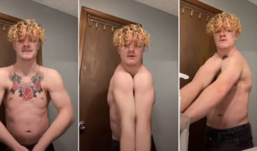 Holy Smokes: Guy Born Without Collarbones Can Clap His Shoulders