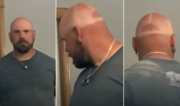 Man With Shaved Head Fails To Use Sun Protection, Gets Perfect Baseball Cap Tan