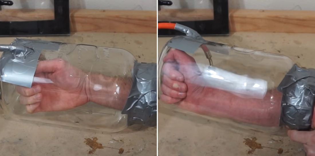 Doing Science: Man Puts Arm In Vacuum Chamber