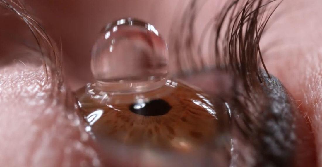 Slow Motion Closeup Of Eye Drop In Eyeball